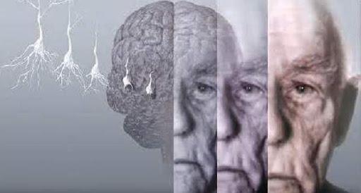 Терапия при деменции, деменция с тельцами леви