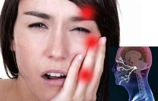 Лечение неврита тройничного нерва: симптомы, диагностика, методы терапии воспаления